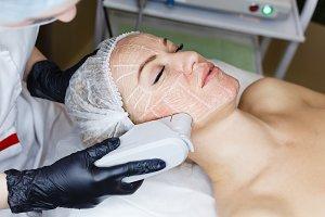 SMAS lifting Ultrasound
