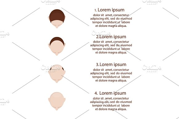Baldness Hair Loss Stages Set