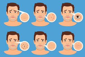 Man skin problems illustration