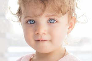 Little girl with unusual eyes