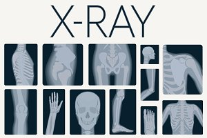 X-rays skeleton shots + icons