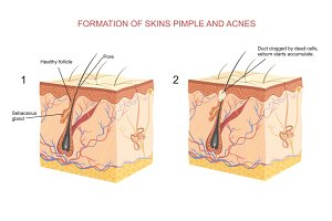 Formation of skins pimple and acnes