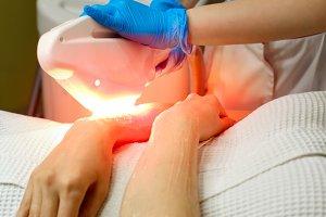 Elos hair removal