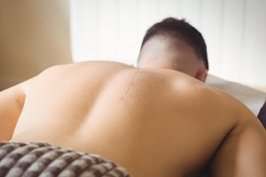 Patient getting dry needling on back
