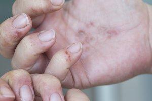 Dermatitits