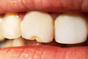 Macro shot of the broken tooth.