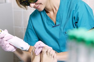 Podiatrist doing a foot laser