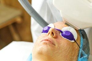 Laser RF-rejuvenation