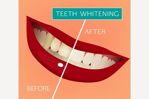 Vector Teeth Whitening Image
