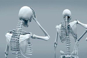 Skeletons having headaches