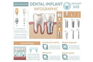 Dental implant tooth care medical center dentist clinic website infographic poster vector illustration