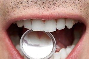 Dental teeth checking concept