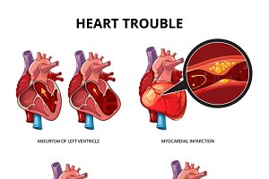 Heart disease vector infographics