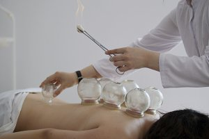 Doctor sets a medical glass cup on the back of a woman