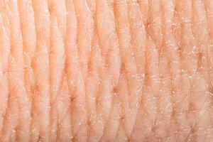 Close up human skin. Macro epidermis