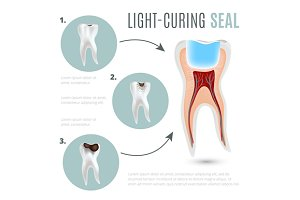 Caries and light-curing seal poster