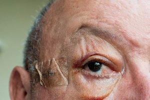 Elderly man face with large edema