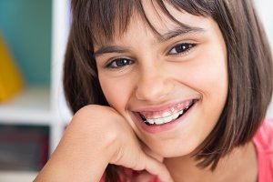 Beautiful smile with orthodontic