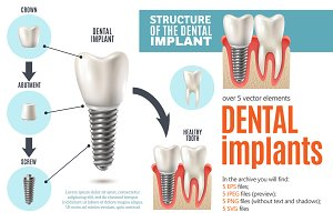 Dental Implants Set