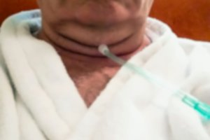 Old man takes the oxygen medical therapy treatment procedure. Plastic tube in the patient's nose