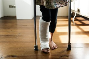 A girl with broken leg