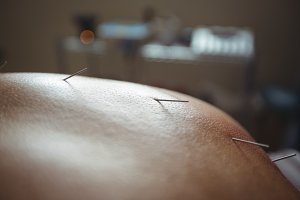 Close-up of man receiving acupuncture treatment