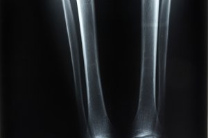 X-ray of both human legs