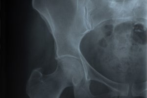 radiograph of the pelvis