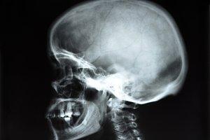 skull x-rays image sagital plane