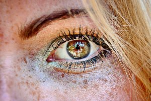 green brown eyed ablond young girl with damaged skin and freckles