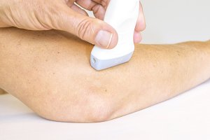 Ultrasound treatment on elbow