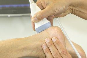 Ultrasound echo on foot