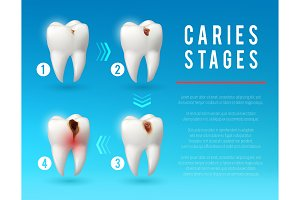 Tooth decay 3d poster of dental caries development