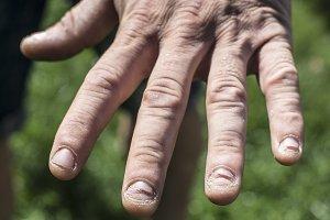 Sick nails on men hand