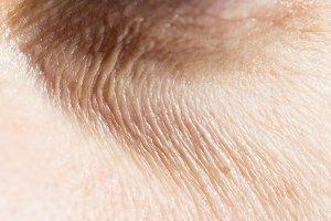 Wrinkles under the eyes