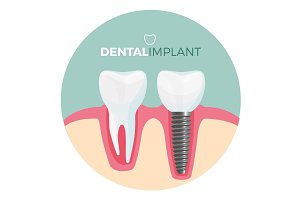 Dental implant placard with title on vector illustration