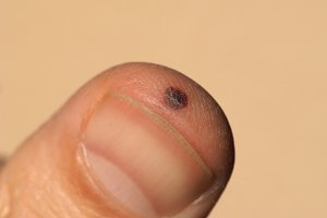 finger injury following hammer blow
