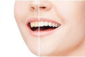 The female teeth before and after whitening.