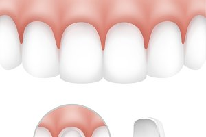 Dental veneers on human teeth