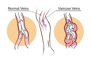 Varicose veins illustration