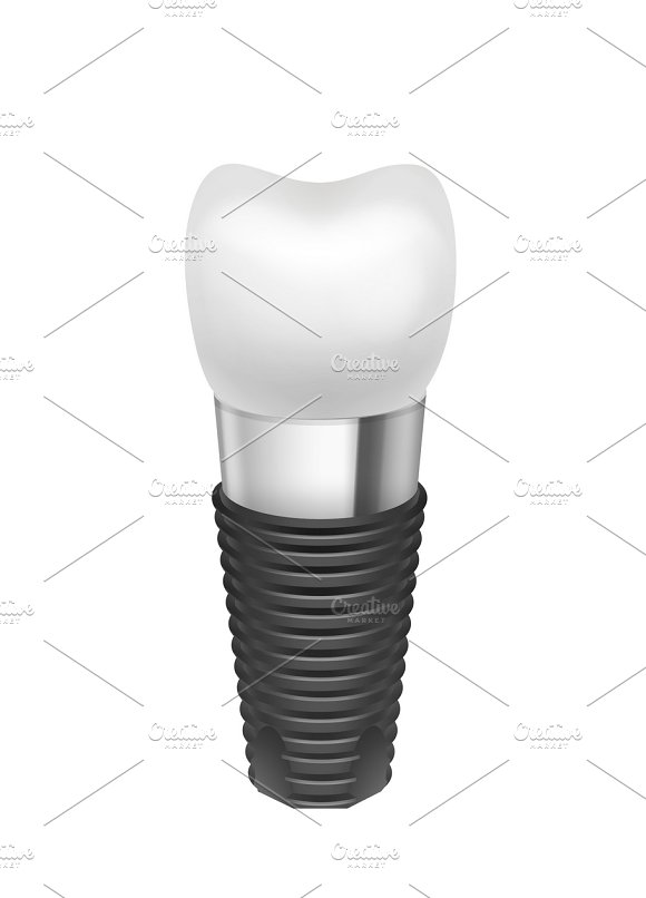 Metal assembled tooth implant
