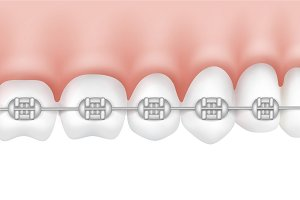 Human teeth with metal braces