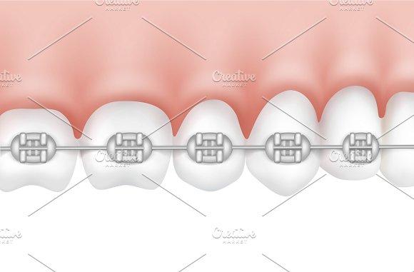 Human teeth with metal braces