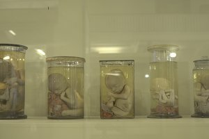 Anatomical human specimens in formalin