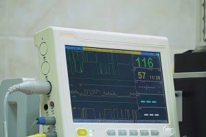 Cardiac monitor in operating room