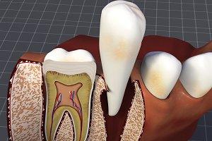 Teeth and Gums Anatomy