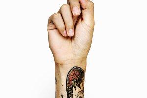 bandaged finger (PSD)