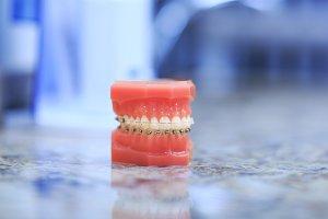 Denture picture