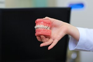 Dentist holding tooth model