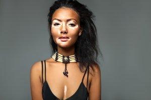 Vitiligo African Girl